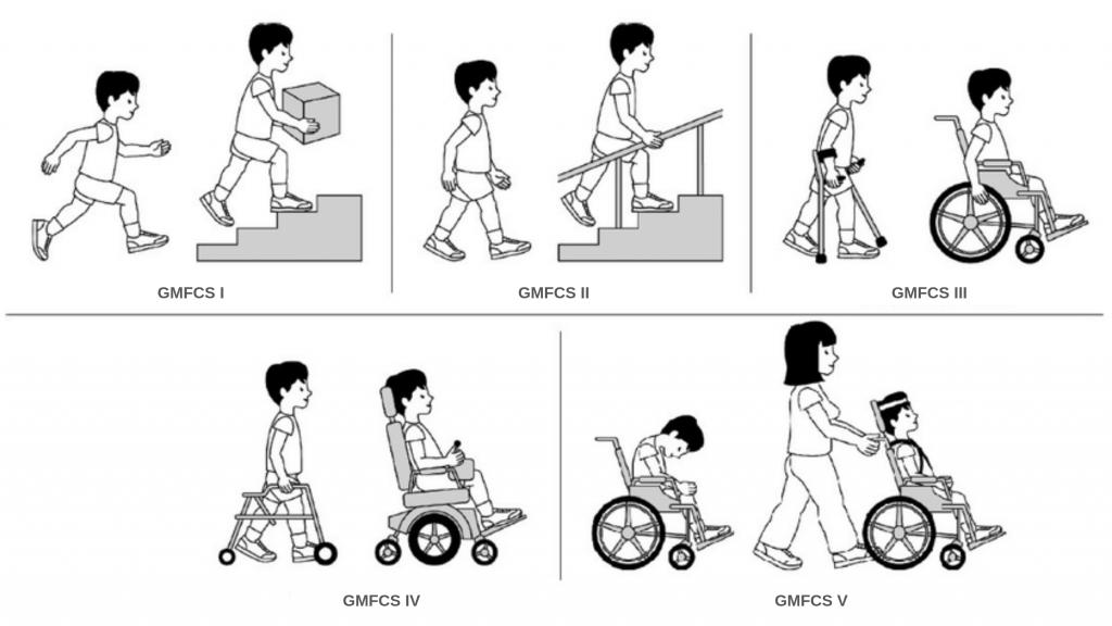 детский церебральный паралич и мобильность
