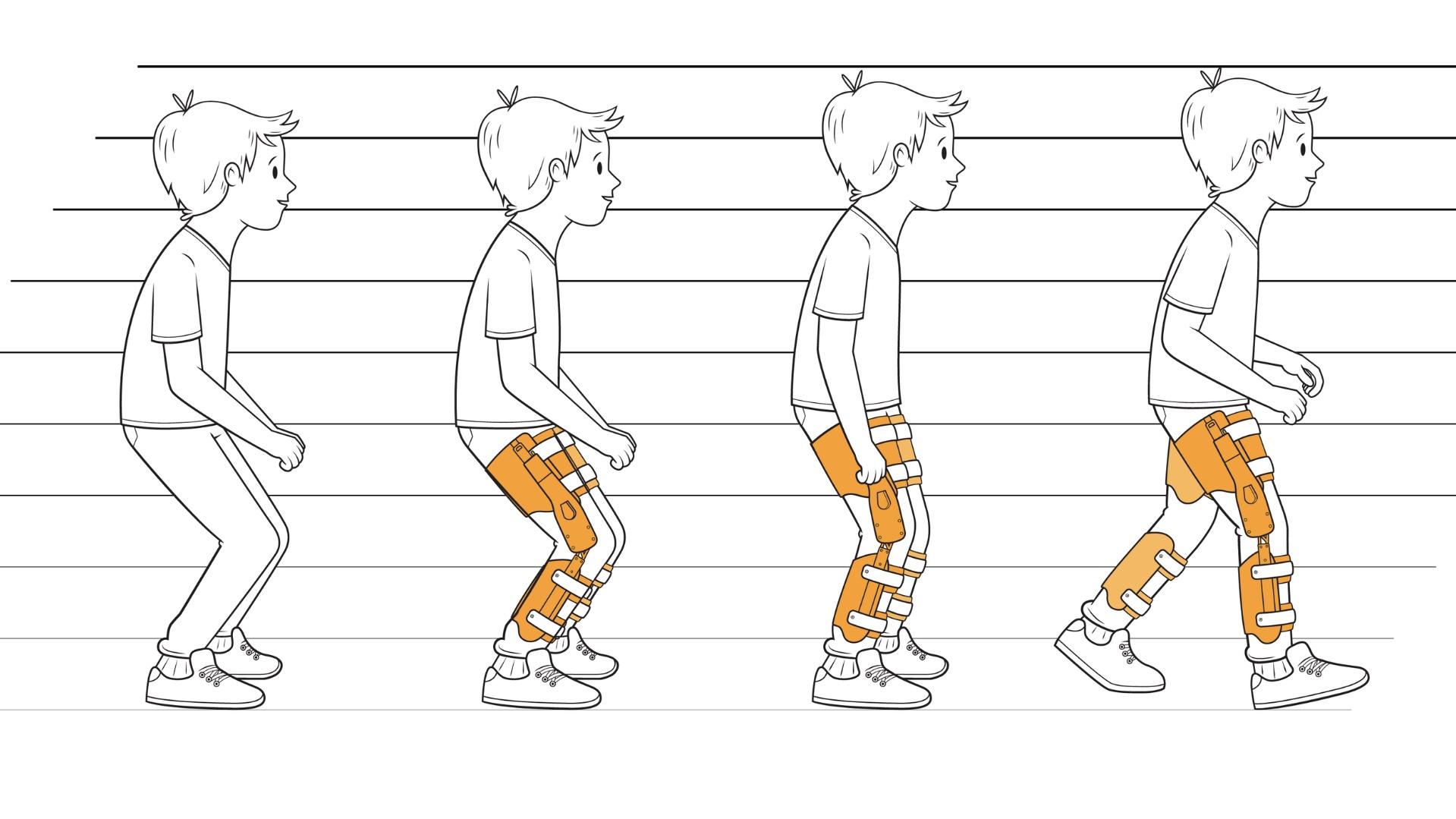 Классификация паттернов ходьбы у детей с ДЦП