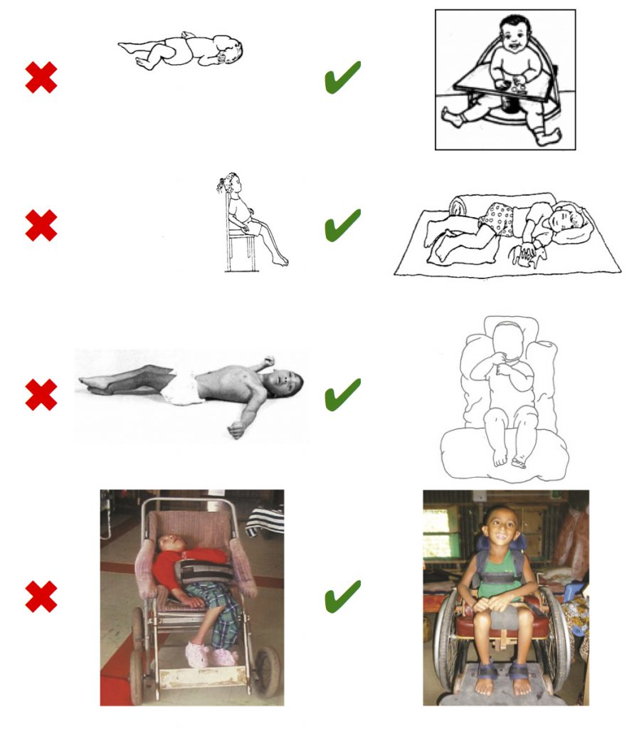 позиционирование детей с дцп