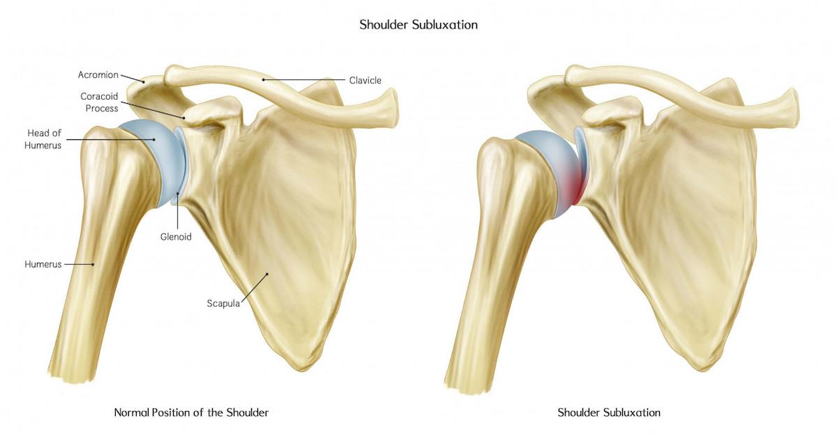 Подвывих плеча при гемиплегии