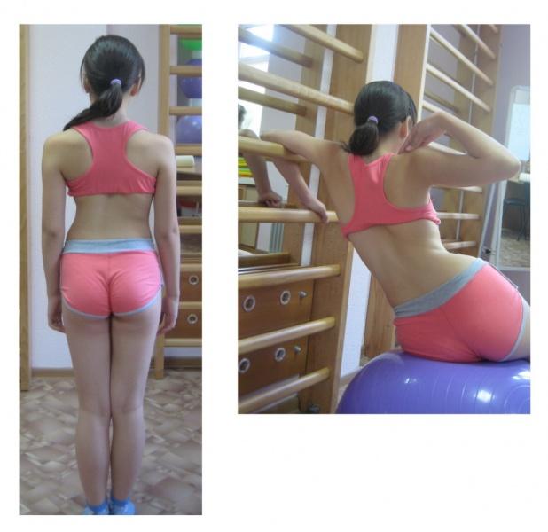 упражнения при сколиозе