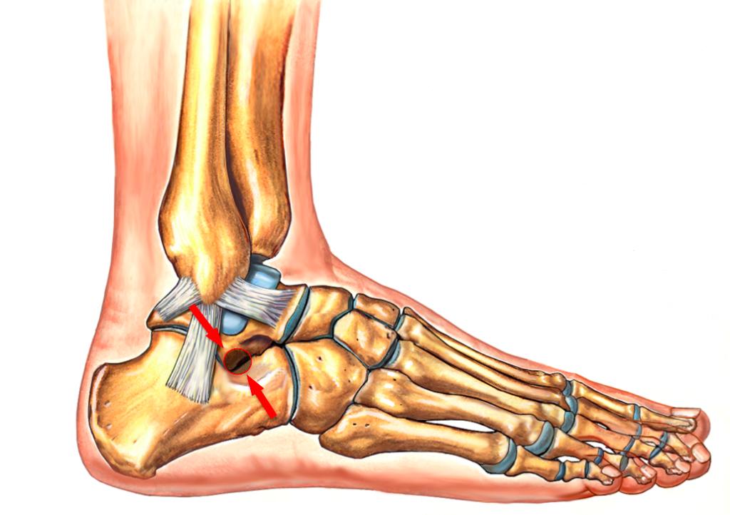 мобилизация голеностопного сустава и суставов стопы
