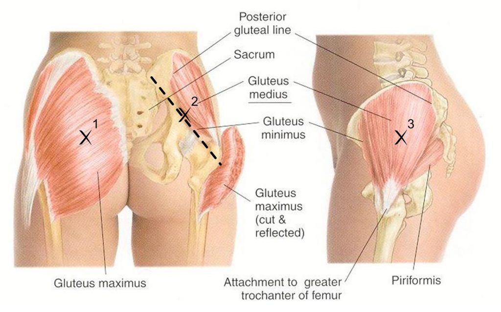 средняя ягодичная мышца