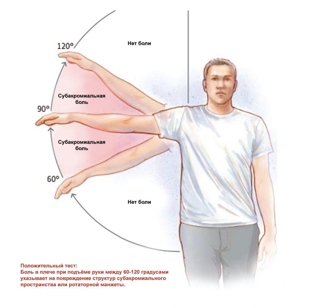 субакромиальный болевой синдром