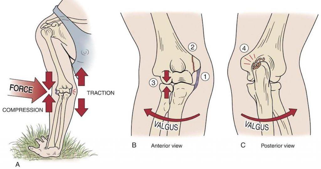 повреждения связок локтевого сустава