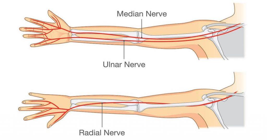 сдавление локтевого нерва