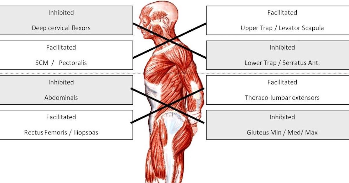 Нижний перекрестный синдром
