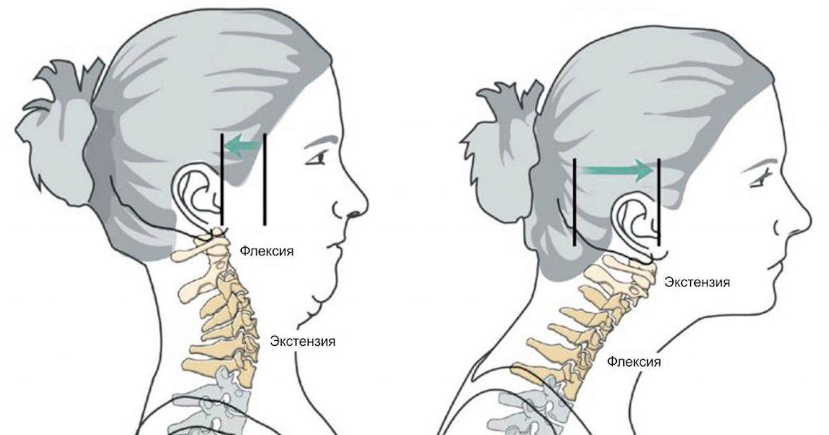 Переднее положение головы
