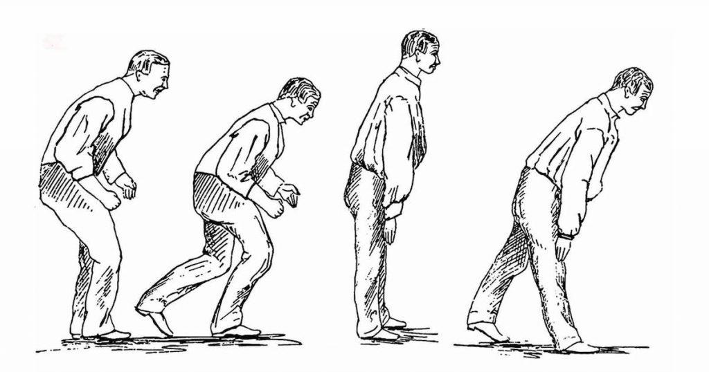 тренировка ходьбы при болезни паркинсона