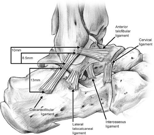 растяжение синдесмоза голеностопного сустава