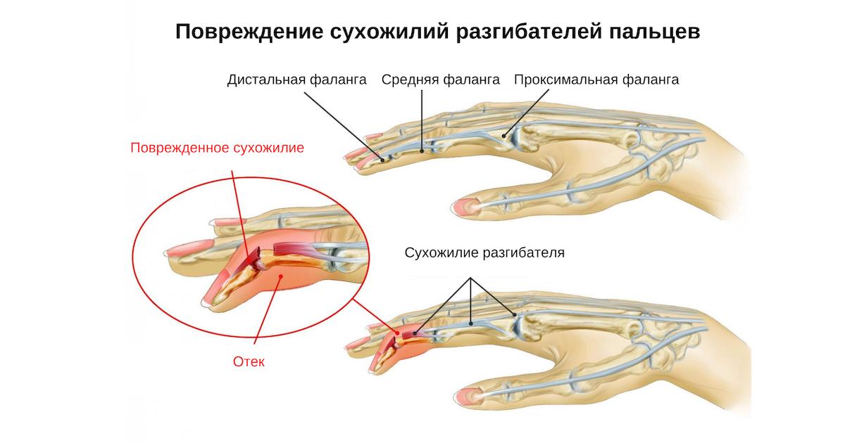 Повреждение сухожилий разгибателей пальцев и кисти