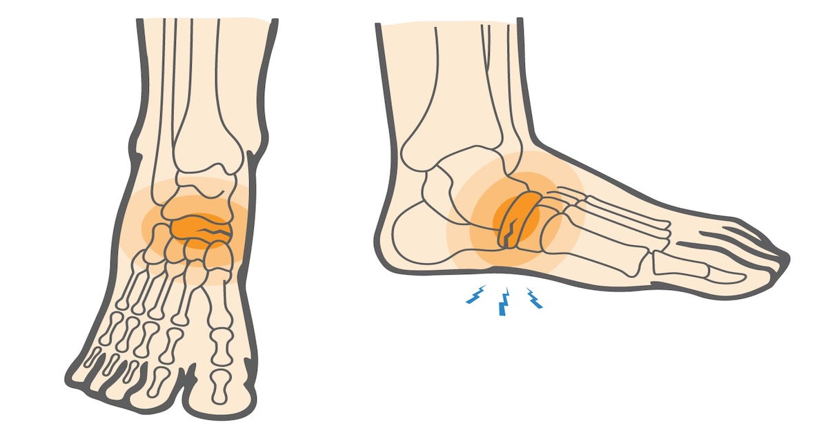 Стрессовые переломы голени и стопы