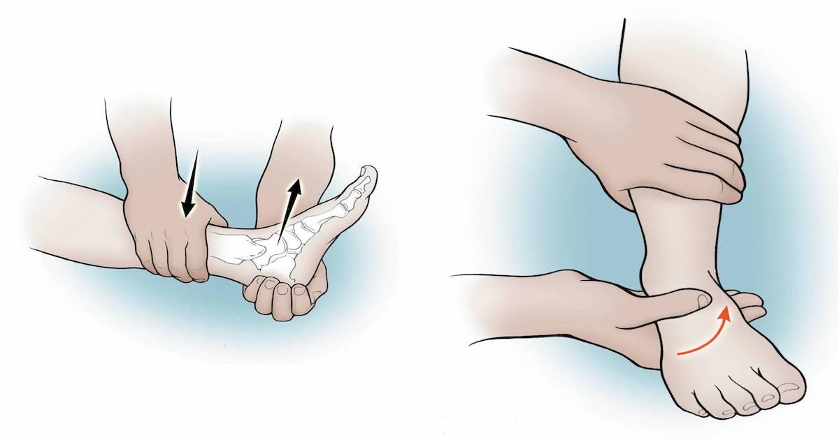 Тест наклона таранной кости