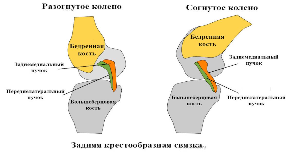 Консервативное лечение повреждений задней крестообразной связки