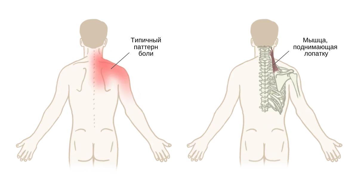 Синдром мышцы, поднимающей лопатку