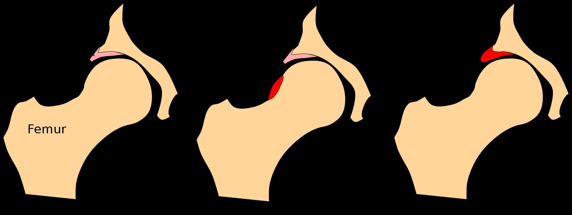 Диагностика повреждений вертлужной губы
