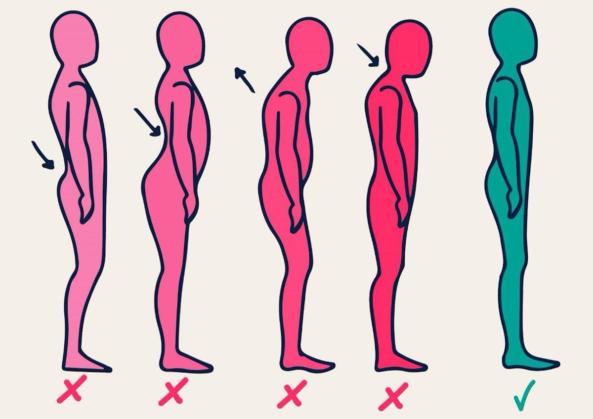 Корректирующие упражнения: что мы корректируем?