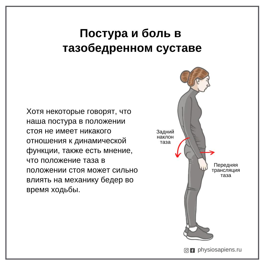 Постура и боль в тазобедренном суставе