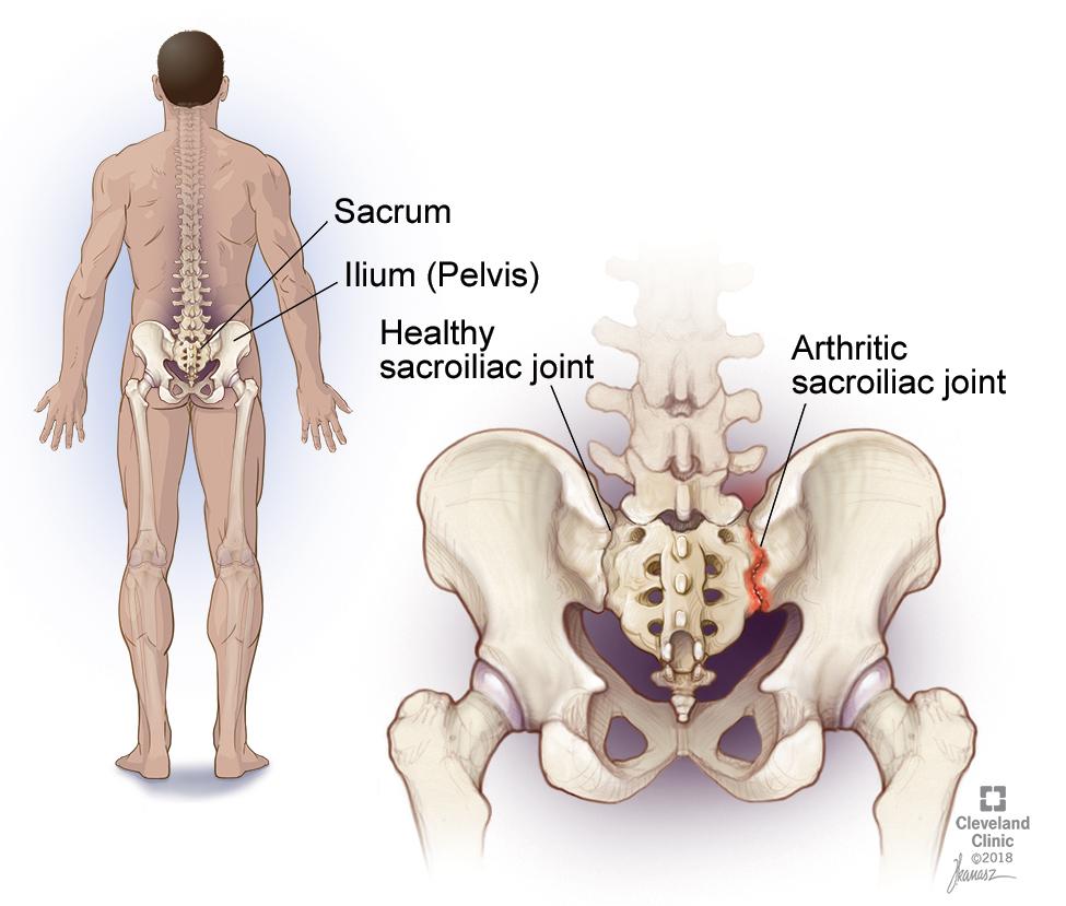 Дисфункция крестцово-подвздошного сустава