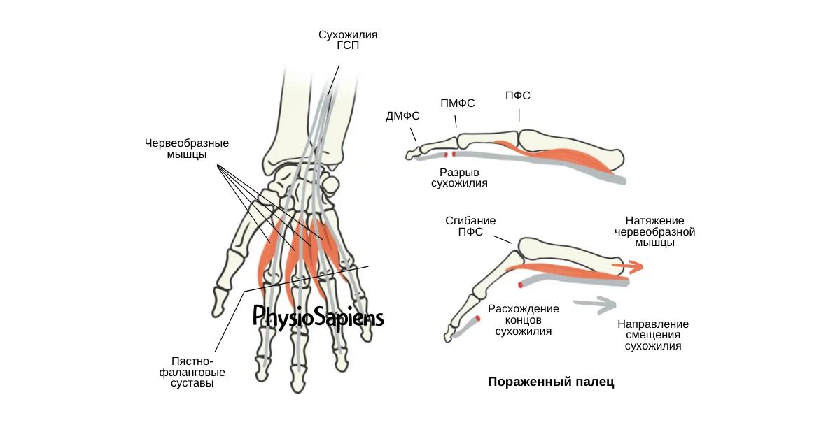 Червеобразные мышцы кисти