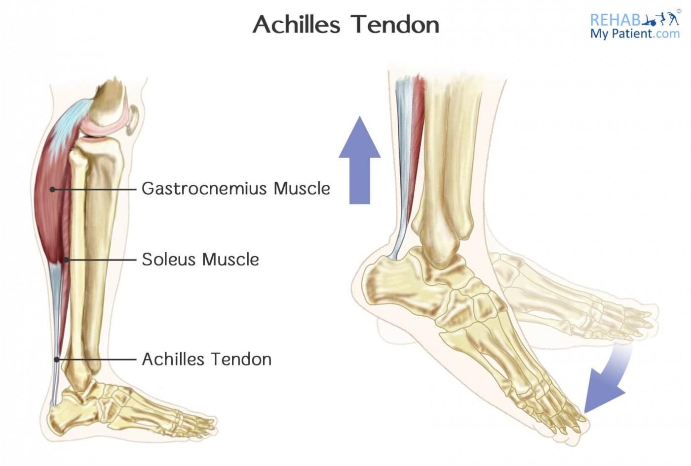 Реабилитация после разрыва ахиллова сухожилия