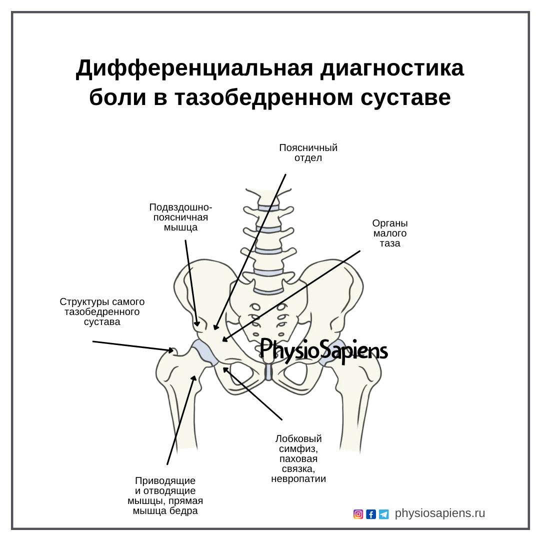 Дифференциальная диагностика боли в тазобедренном суставе