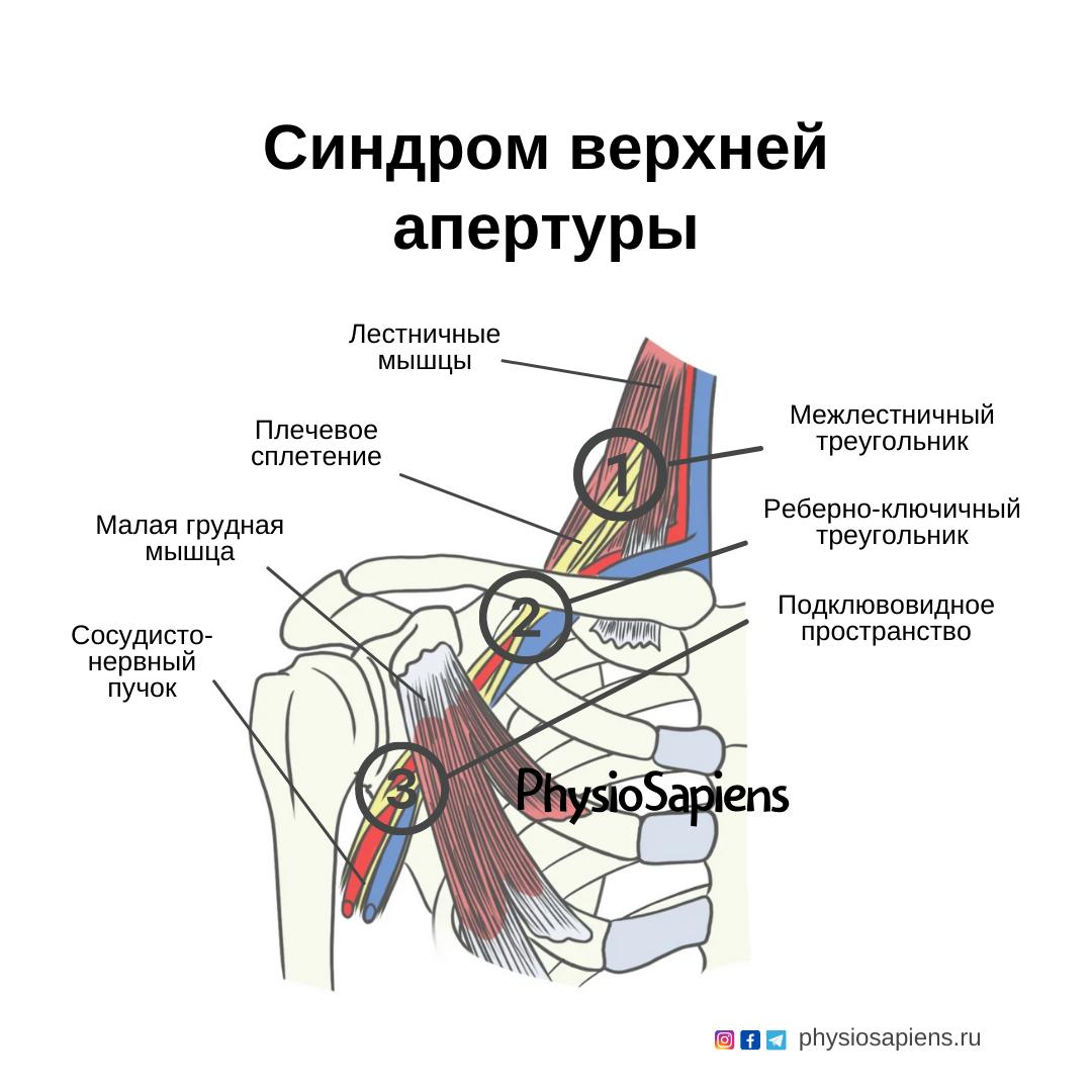 Синдром верхней апертуры