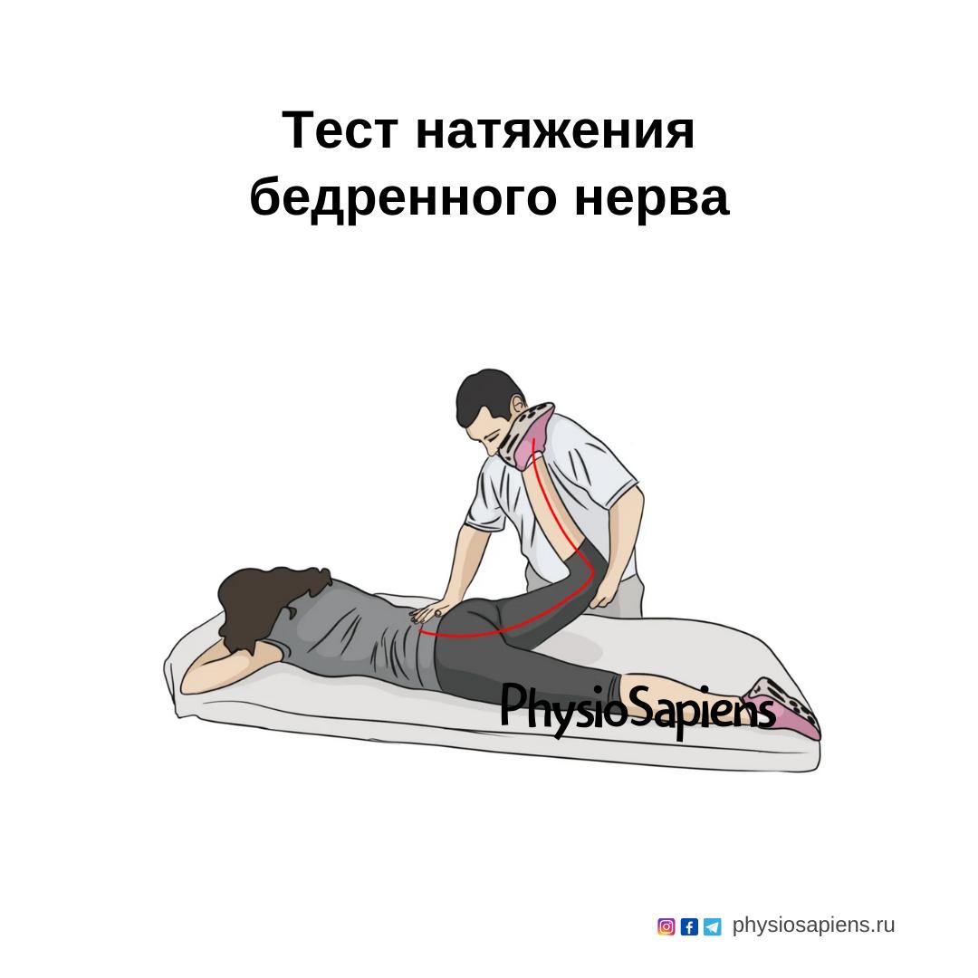Тест натяжения бедренного нерва
