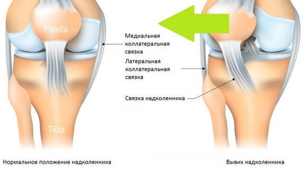 Остеохондроз шеи лечение током