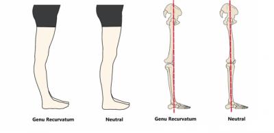 Ультразвуковая семиотика болезни гоффа коленного сустава