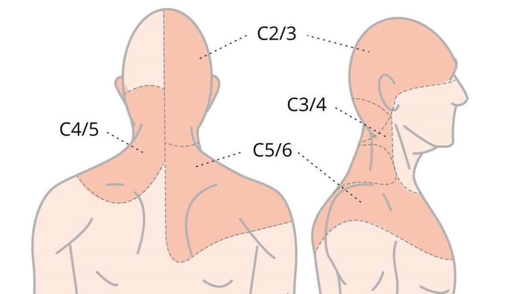 классификация боли в шее по типу лечения