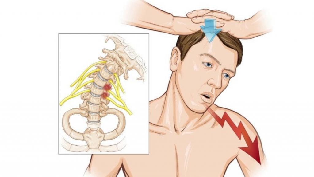 тест спурлинга - диагностика шейной радикулопатии